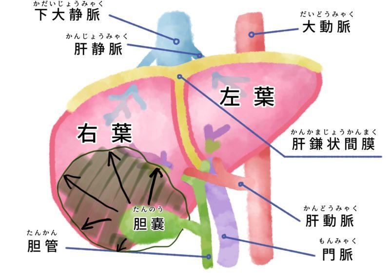 胆嚢が腫大した模式図