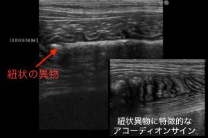 紐状異物 超音波画像