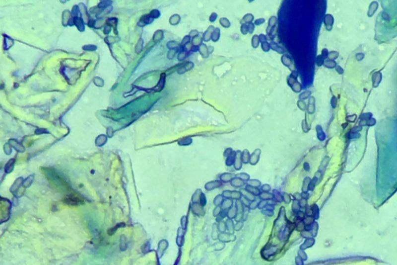 マラセチア/顕微鏡写真