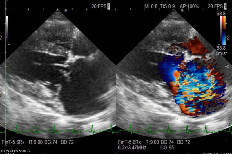 心臓の超音波検査